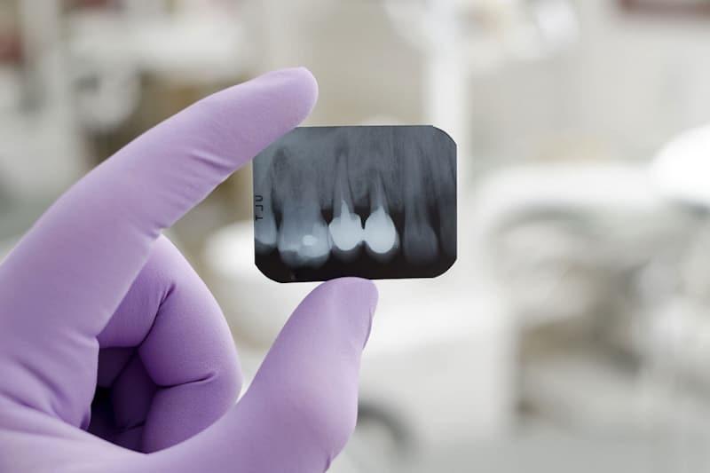 Zdjęcie zęba RTG zęba