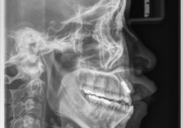 Zdjęcie cefalometryczne telerentgenogram