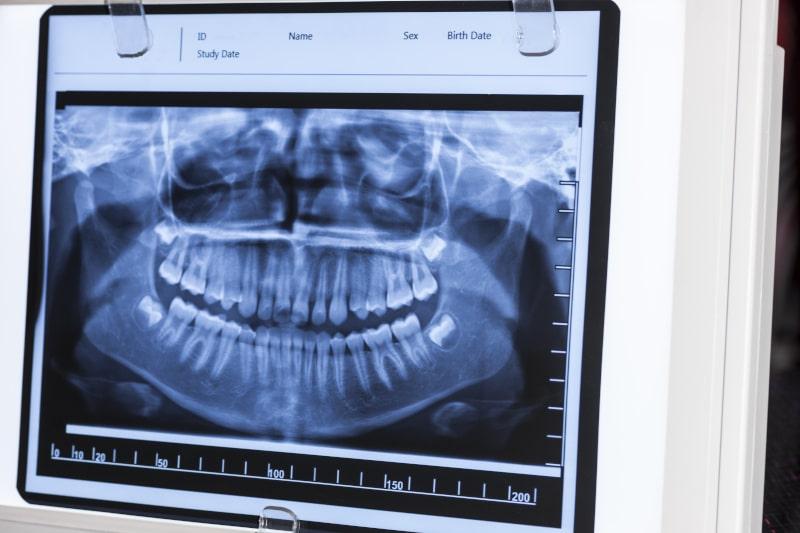 pantomogram zdjęcie szczęki